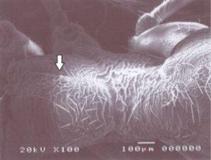 ミクロの世界 蟻(背中)